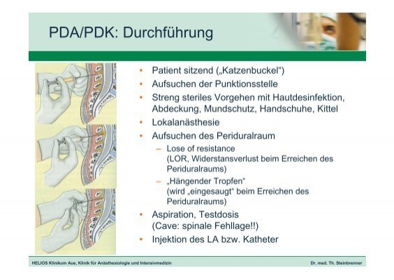 PDA/PDK: Anatomie • Epi