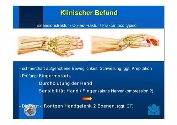 dorsalextendierte Hand Ex