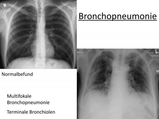 DD Bakterielle Pneumonie