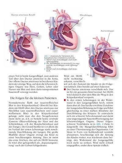 Ductus arteriosus Botalli
