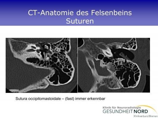 CT-Anatomie des Felsen