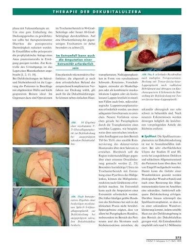 Fazialisparese - Plastische Chirurgie Frankfurt