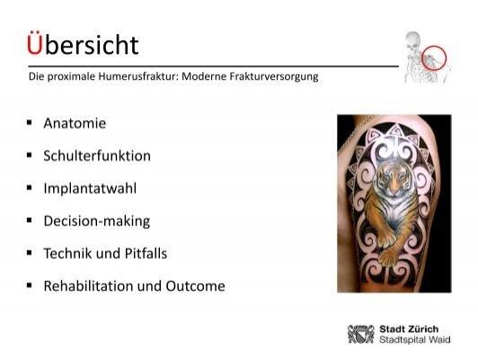 Schön Anatomie Des Proximalen Humerus Fotos - Anatomie Von ...