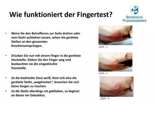Fingertest ist schwul