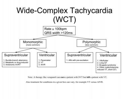 Wide-Complex Tachycardia (WCT) - Northwestern Cardiology Fellows