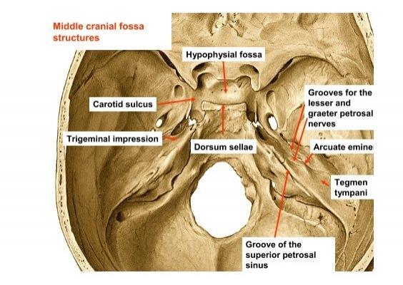 Middle cranial fossa stru