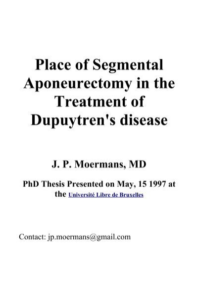 thesis dupuytren The aggregated total of 385 cases of dupuytren's disease arising after acute or  specific injury,  cases in german theses referenced by skoog which we.