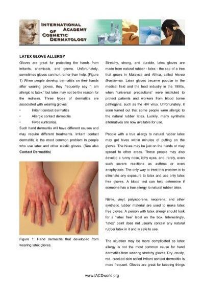 www iacdworld org latex glove allergy