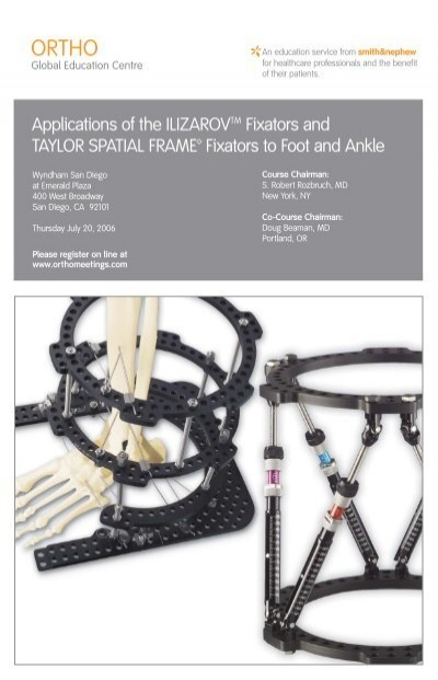 Applications of Ilizarov/ Taylor Spatial Frame - Hospital for ...