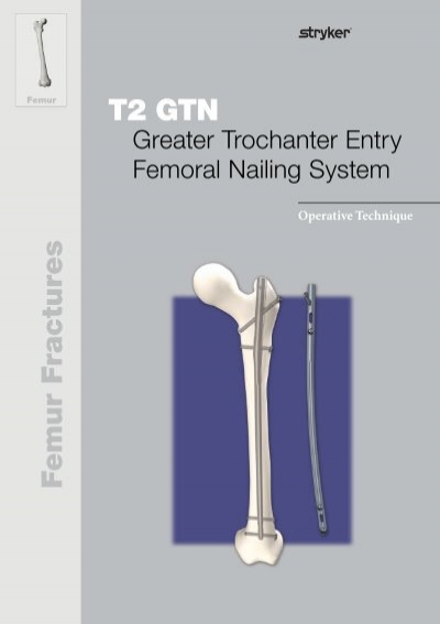 trochanteric femoral fractures treated with mclaughlin osteosynthesis Jensen js, michaelsen m trochanteric femoral fractures treated with mclaughlin osteosynthesis acta orthop 1975 46: 795-803 11 keats as the asa classification of physical status-a recapitulation anesthesiology 1978 49: 233-5 12 world health organization who scientific group on the assessment of osteoporosis.