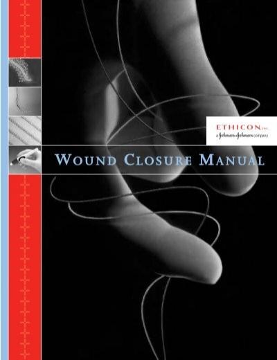 wound closure manual pdf penn medicine rh yumpu com wound closure manual penn medicine wound closure manual ethicon johnson johnson
