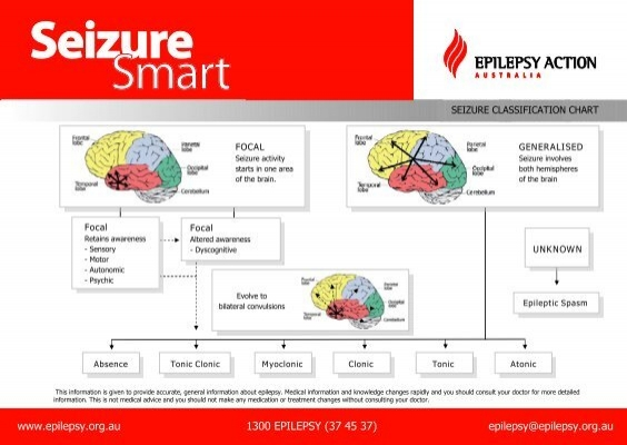seizure smart 226 classification of seizures epilepsy