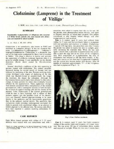 Lamprene In The Treatment Of Vitiligo
