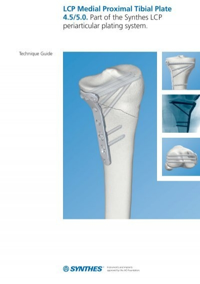 depuy synthes product catalog pdf