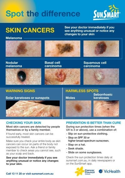 Spot The Difference Skin Cancers Flyer Sunsmart