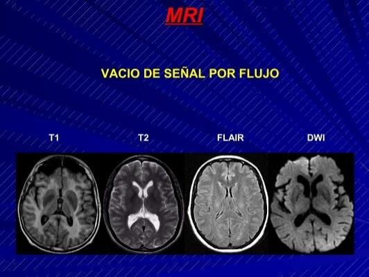 MRI VACIO DE SEÑAL POR F