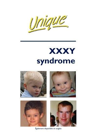 Xxxxy Syndrome XXXY syndrome F...