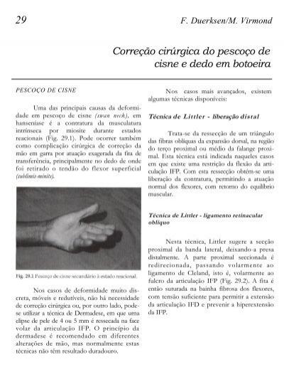 Poliartrita reumatoidă - ce este, cauze, diagnostic, evoluție, tratament